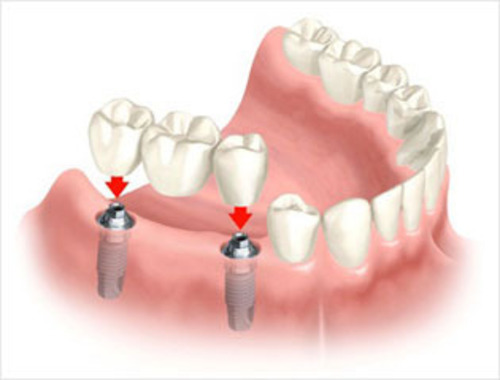 Implant Bridge